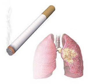 Легкие и сигарета